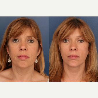 45-54 year old woman treated with Facelift before 3705843