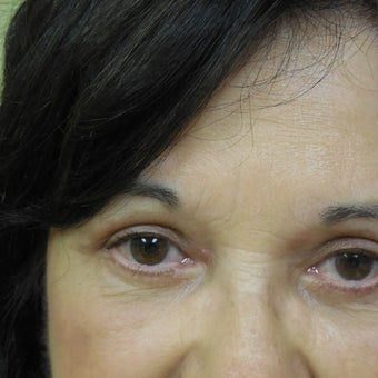 55-64 year old woman treated with Eyelid Surgery 1574192