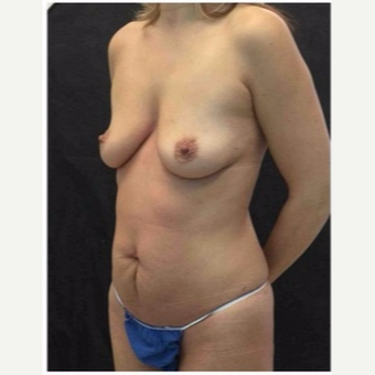 45-54 year old woman treated with Mommy Makeover before 3046413