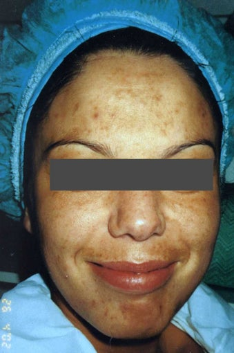 Hispanic woman 30-40 year old treated for Melasma and Acne Scars before 754265
