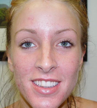 Acne patient treated with laser to clear her acne after 1328598