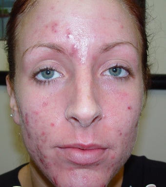 Acne patient treated with laser to clear her acne before 1328598