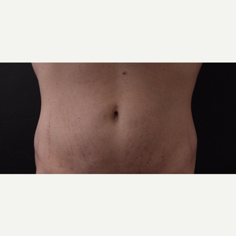 30 year old man treated with CoolSculpting after 3630331