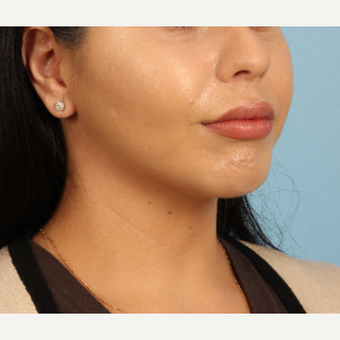 18-24 year old woman treated with Lip Augmentation after 3339297