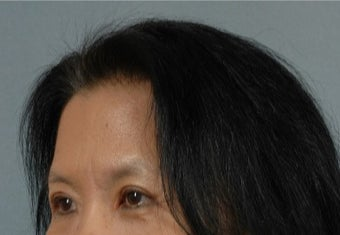45-54 year old woman treated with Asian Eyelid Surgery after 3615935