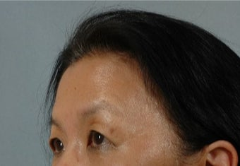 45-54 year old woman treated with Asian Eyelid Surgery before 3615935