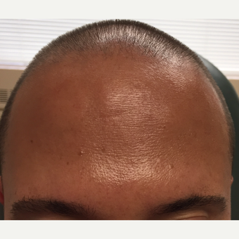 35-44 year old man treated with Dysport to the forehead after 2987999