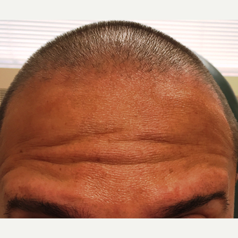 35-44 year old man treated with Dysport to the forehead before 2987999