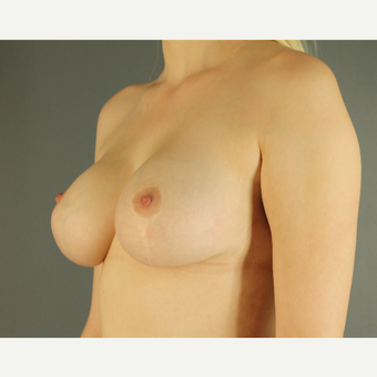 25-34 year old woman treated with Breast Lift with Implants after 3026762