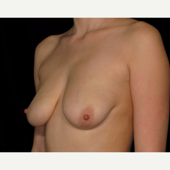 25-34 year old woman treated with Breast Lift with Implants before 3026762