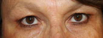 Upper Eyelid Surgery before 824343