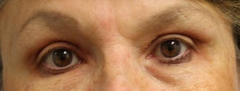 Upper Eyelid Surgery after 824343