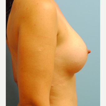18-24 year old woman treated with Breast Augmentation after 3060822