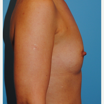 18-24 year old woman treated with Breast Augmentation before 3060822