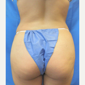 25-34 year old woman treated with Liposuction