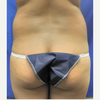 25-34 year old woman treated with Liposuction before 3071332