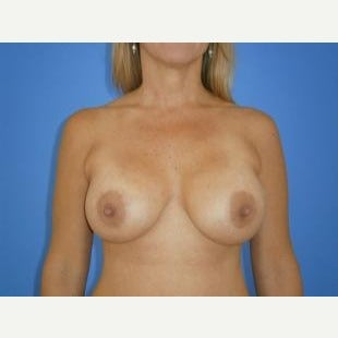 45-54 year old woman treated with Breast Lift with Implants after 1608366