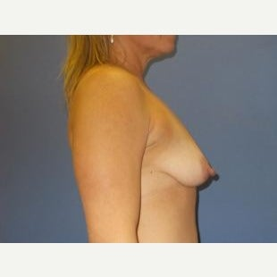 45-54 year old woman treated with Breast Lift with Implants 1608366