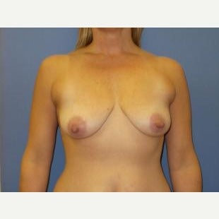 45-54 year old woman treated with Breast Lift with Implants before 1608366