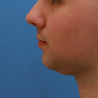 Young Man interested in Chin Enhancement (Chin Implant)