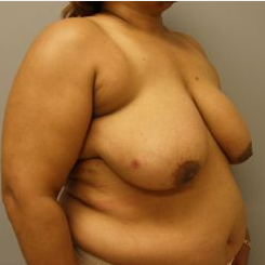 55-64 year old woman treated with Breast Reduction before 3280636
