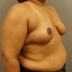 55-64 year old woman treated with Breast Reduction after 3280636