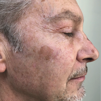 Man treated with Halo Laser 3 months after 1 treatment