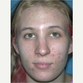 18-24 year old woman treated with Acne Treatment