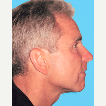 Neck Lift after 3824766