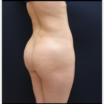 25-34 year old woman treated with Brazilian Butt Lift Revision with 712cc Round Silicone Implants before 3259485