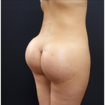 25-34 year old woman treated with Brazilian Butt Lift Revision with 712cc Round Silicone Implants after 3259485