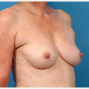 55-64 year old woman treated with Fat Transfer before 3218985