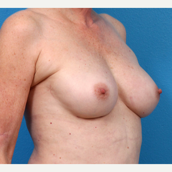55-64 year old woman treated with Fat Transfer after 3218985