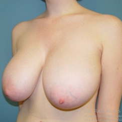 18-24 year old woman treated with Breast Reduction before 1711796