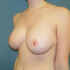 18-24 year old woman treated with Breast Reduction after 1711796