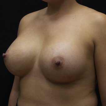 Breast Augmentation after 3012466