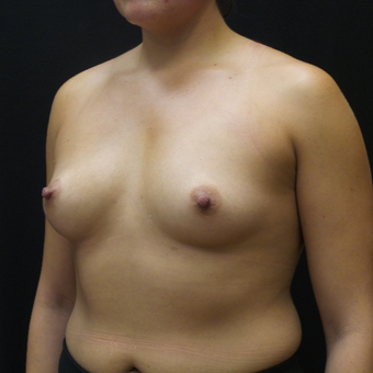Breast Augmentation before 3012466