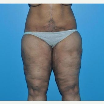 25-34 year old woman treated with Body Lift & Thigh Lift after 1866107