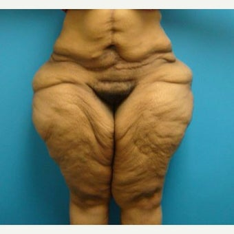 25-34 year old woman treated with Body Lift & Thigh Lift before 1866107