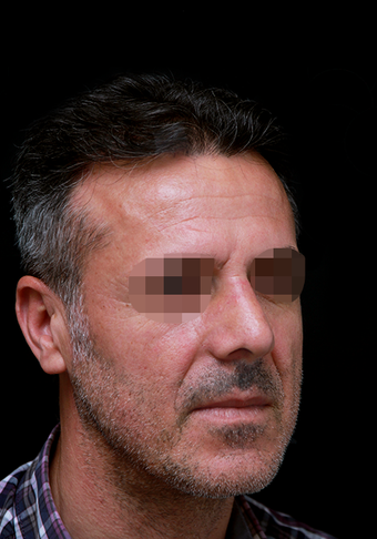 35-44 year old man treated with Rhinoplasty after 3204722