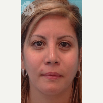 25-34 year old woman treated with Rhinoplasty after 3473392