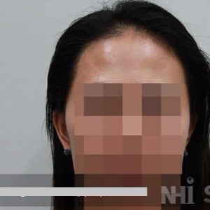 25-34 year old woman treated with Forehead Reduction after 2020516
