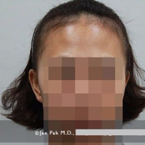 25-34 year old woman treated with Forehead Reduction before 2020516