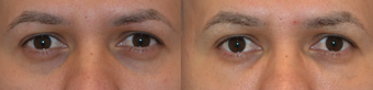 Treatment of Dark Circles Under the Eyes with Juvederm before 987766