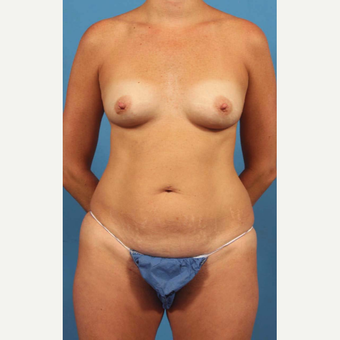 35-44 year old woman treated with Liposuction before 3787261