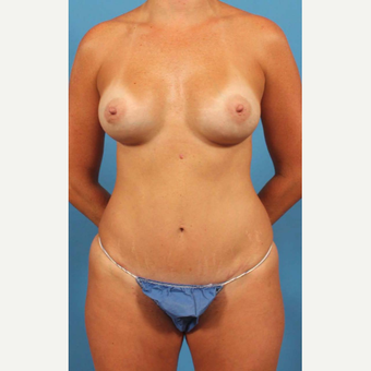 35-44 year old woman treated with Liposuction after 3787261