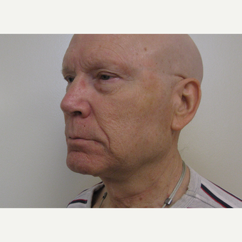 65-74 year old man treated with Neck Lift after 3439770