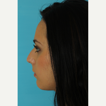 18-24 year old woman treated with Rhinoplasty before 3618391