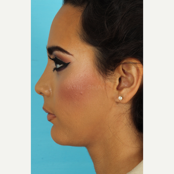 18-24 year old woman treated with Rhinoplasty after 3618391