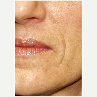 Woman treated with Restylane before 2661352